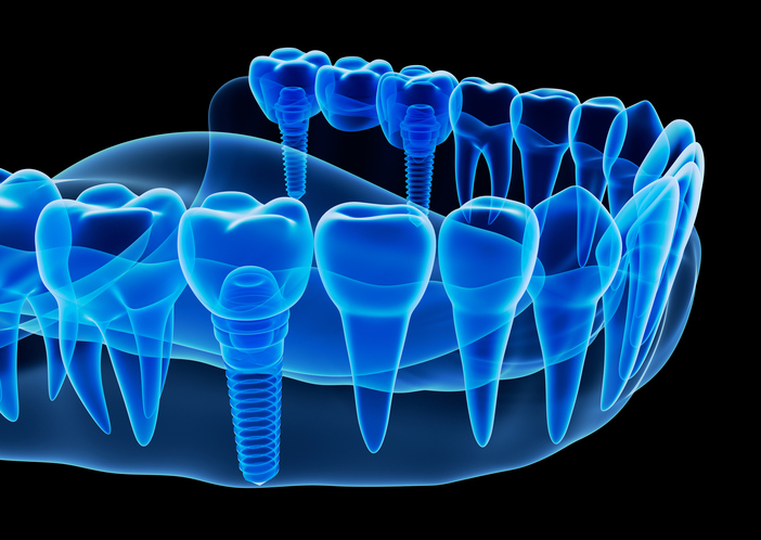diagram of Dental Implants in Barrie, ON