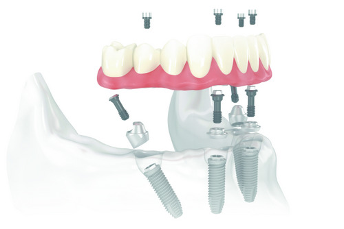 What Should You Consider Prior to All-on-4 Implants?