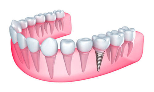 A diagram of how a dental implant fits inside a patients jaw.